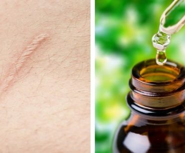 óleo essencial para cicatriz